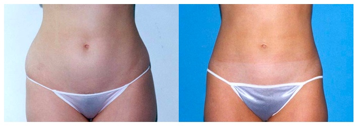 Liposuction in Houston, TX | Best Liposuction The Woodlands