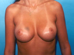 Breast Augmentation Saline