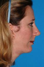 Chin Implants