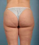 Cellfina™ Cellulite Reduction