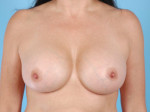 Breast Augmentation Saline