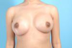 Breast Augmentation Silicone