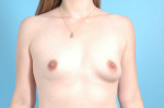 Breast Augmentation Silicone