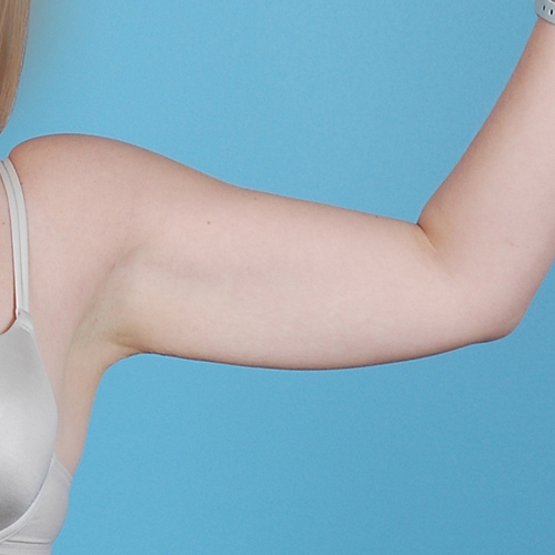 Arm Liposuction Before Afters 01 Dr Andrew Lyos