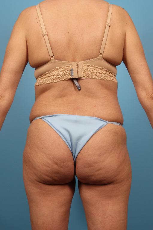 Brazilian Butt Lift Houston | Dr  Andrew Lyos