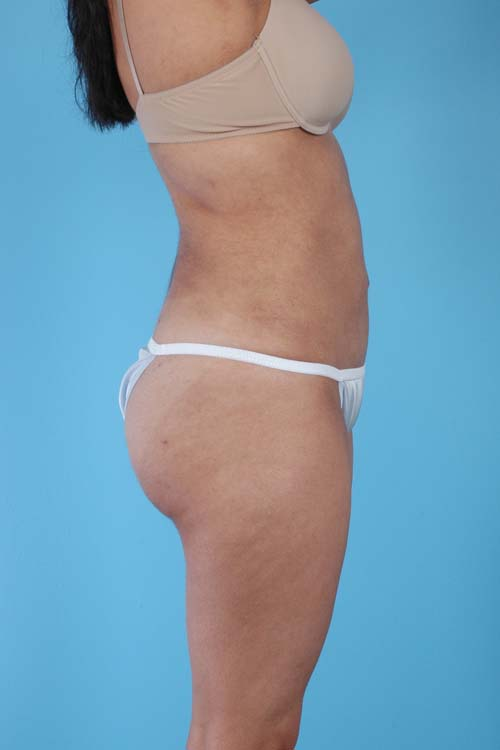 Liposuction Before Amp Afters 10 Dr Andrew Lyos